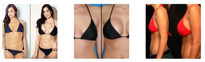 Before and After Breast Actives